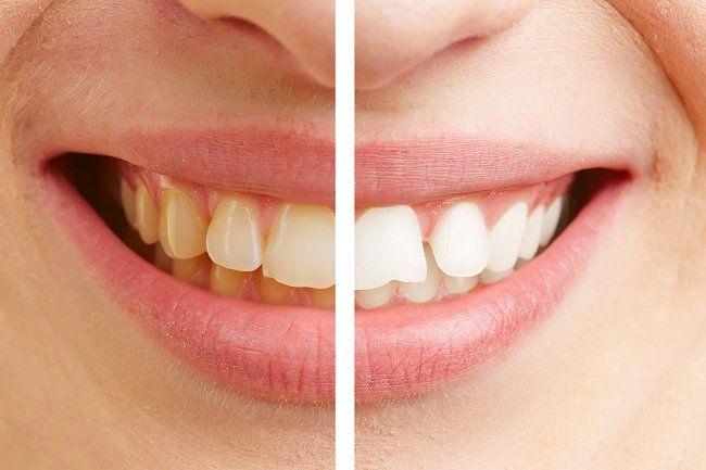 Limpieza dental sarro antes y despues de adelgazar
