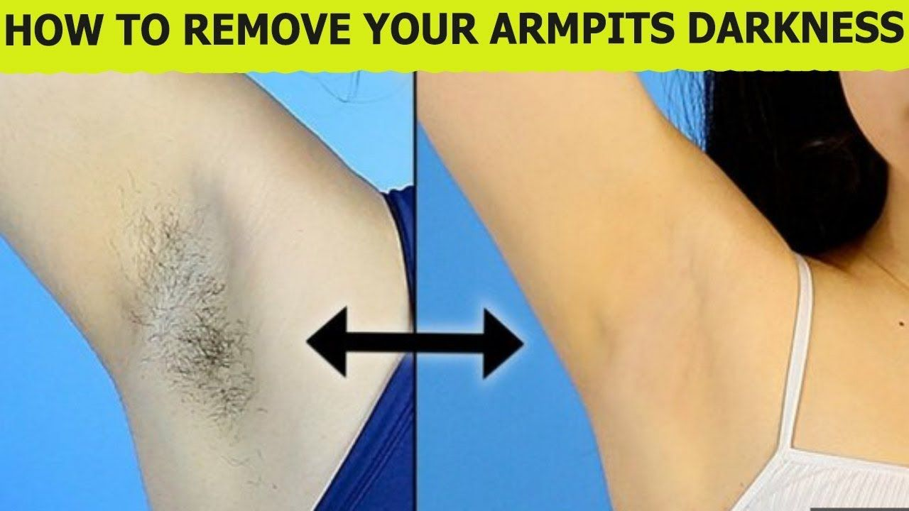 1293a5ce1ebf296de92fb077886e5a86 - How To Get Rid Of Underarm Hair Permanently Naturally