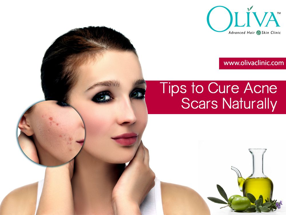 Pin on Skin, Hair & weight loss Tips