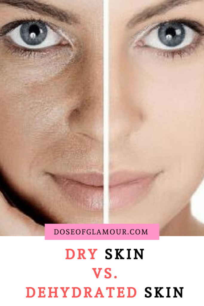 dehydrated skin condition