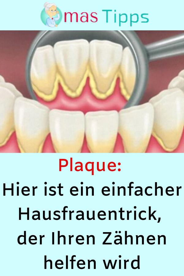 Plaque: Hier ist ein einfacher Hausfrauentrick, der Ihren Zähnen helfen wird #Zähne #Plaque #Hausfrauentrick #Trick #Tipps #nutrition