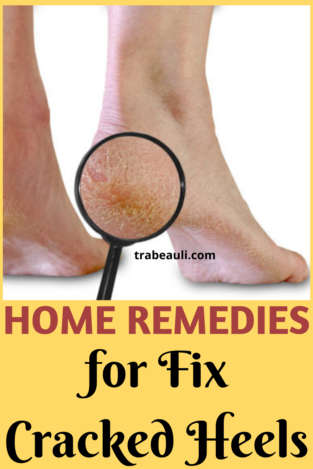 How To Heal Cracked Feet Overnight Home Remedies Trabeauli Dry Feet Remedies Soft Feet Remedy Foot Remedies