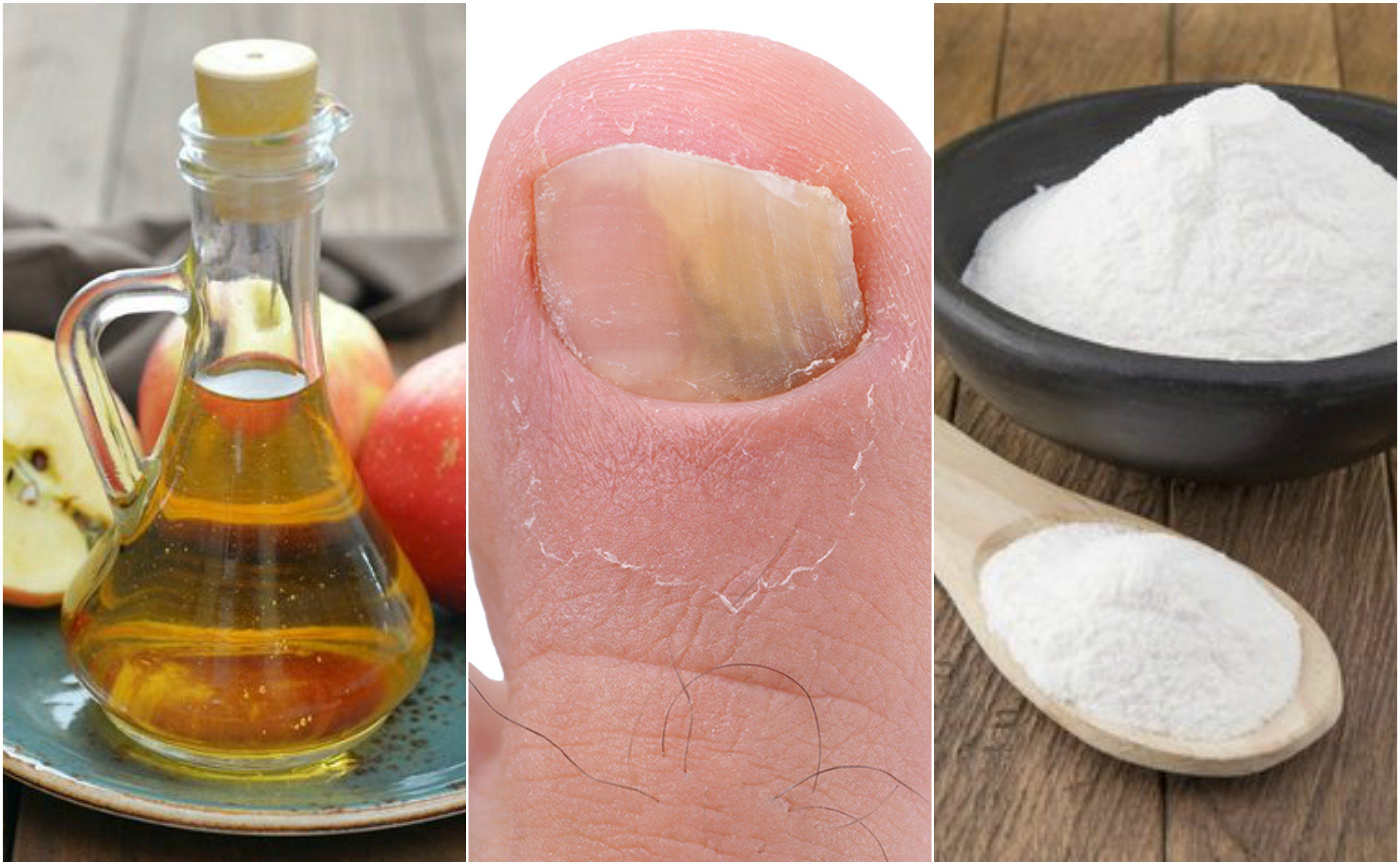 vinagre de manzana para hongos pies