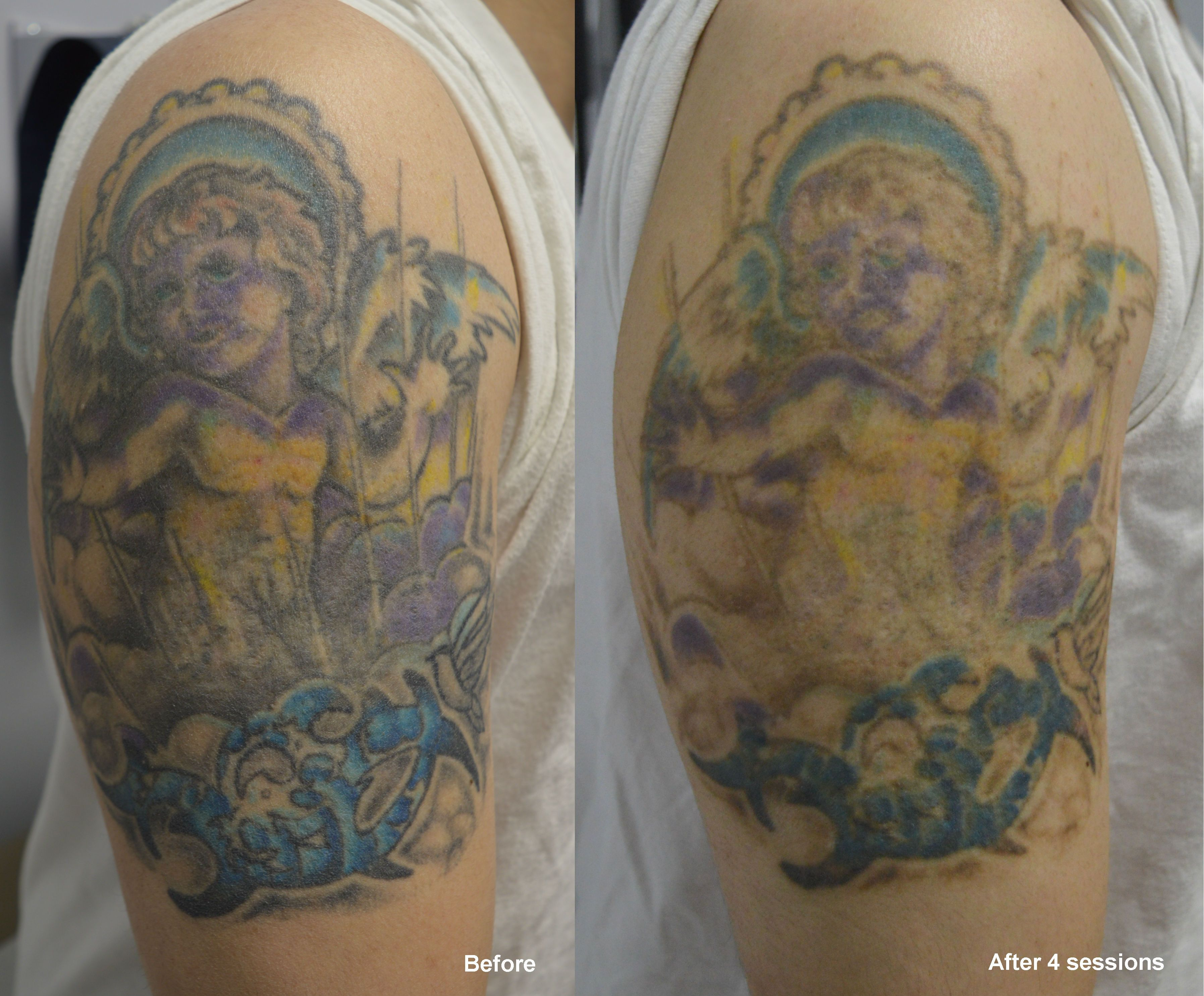 Upper arm tattoo after 4 sessions LaserTattooRemoval
