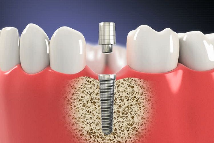Dental implants a modern replacement option for your