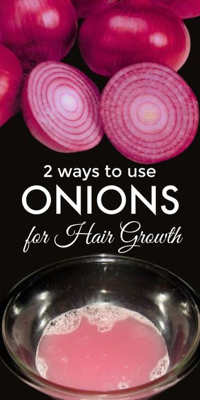 2 most effective ways to use onion for fast hair growth 2 Most Effective Ways To Use Onion For Fast Hair Growth