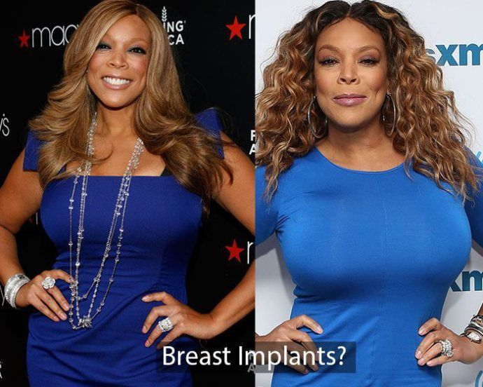 Are wendy williams boobs real