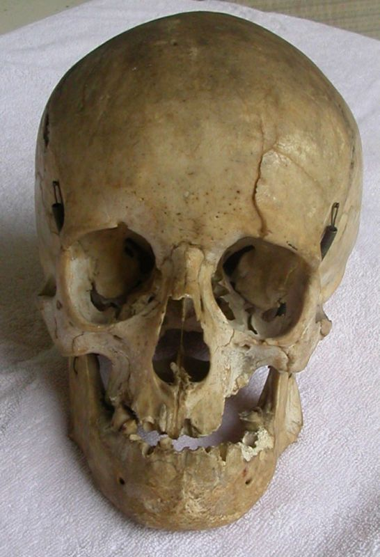 antique real human skull for medical and dental study