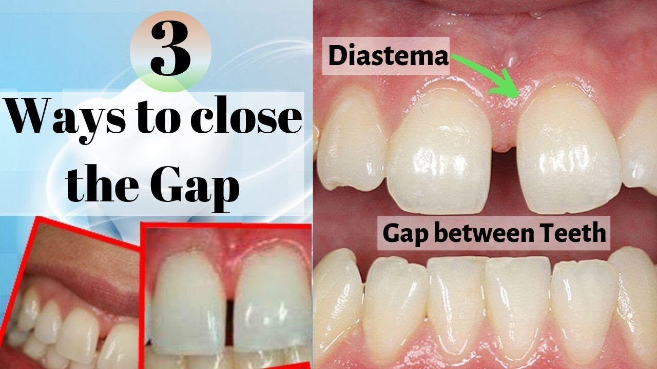 Diastema gaps in front teeth what to do how to fix a