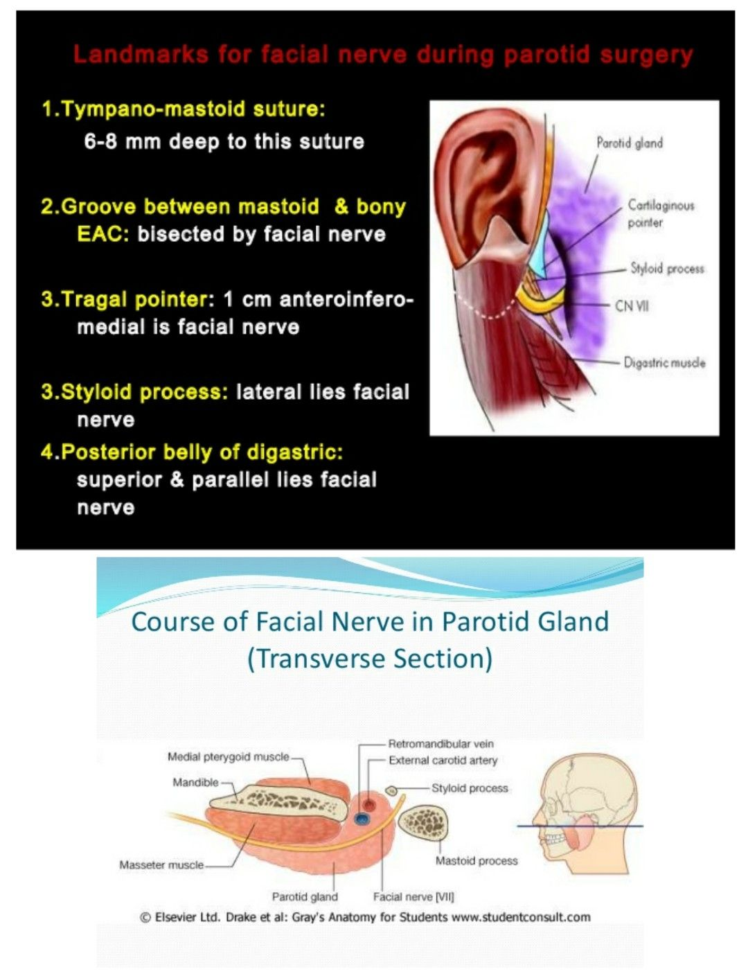 Landmarks For Facial Nerve During Parotid Surgery Note