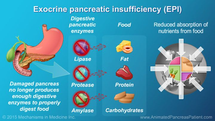 Exocrine pancreatic insufficiency or epi occurs when the