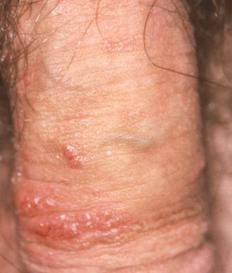 genital warts symptoms male