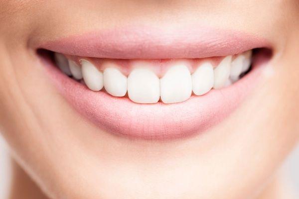 Zo krijg je een witte tandpasta smile - Girlscene