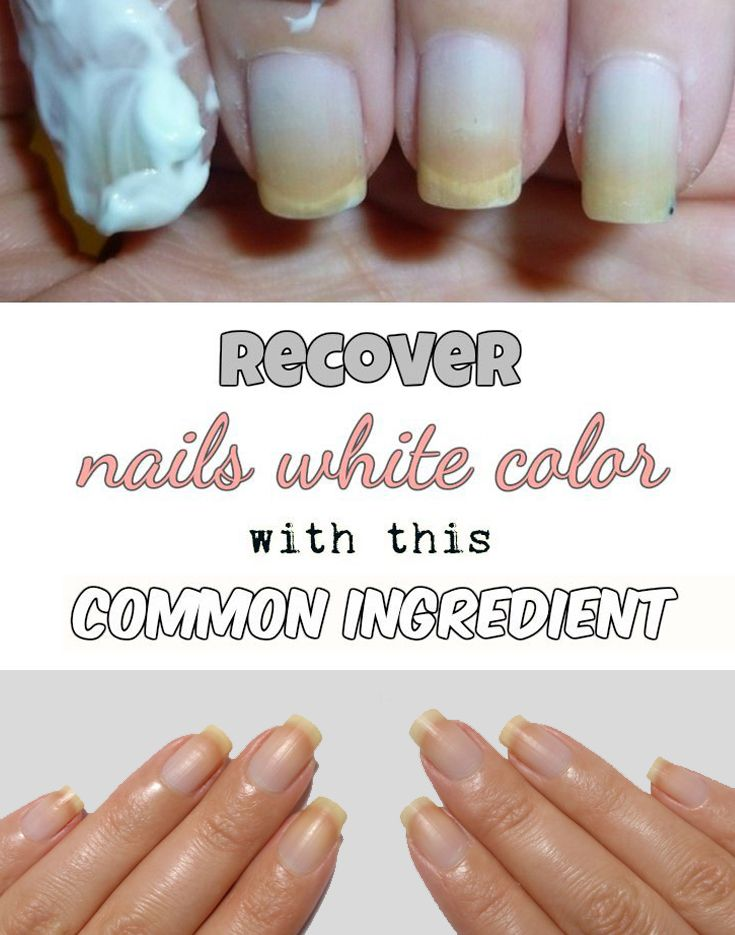 Recover nails white color with this common ingredient