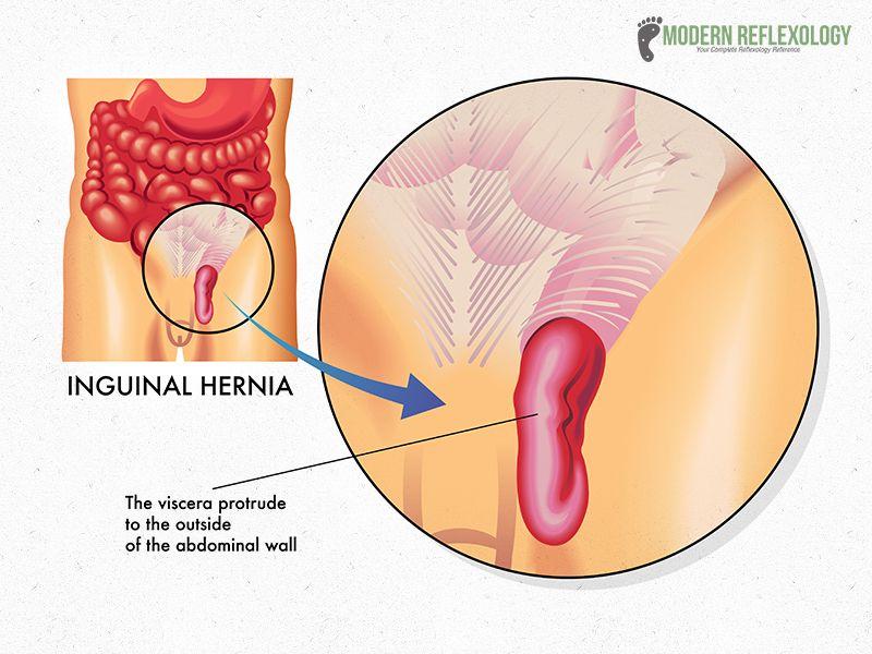 Treatment Of Strangulated Inguinal Hernia | Broken Curve