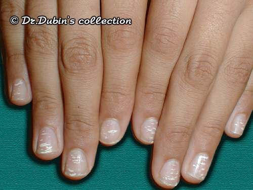 Leuconychia White Discolouration Of The Nail Plate In The Form Of White Spots Or Streaks Usually C Nail Diseases And Disorders Nail Conditions Nails