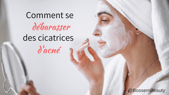 Photo of Comment se débarrasser des cicatrices d'acné – Masque