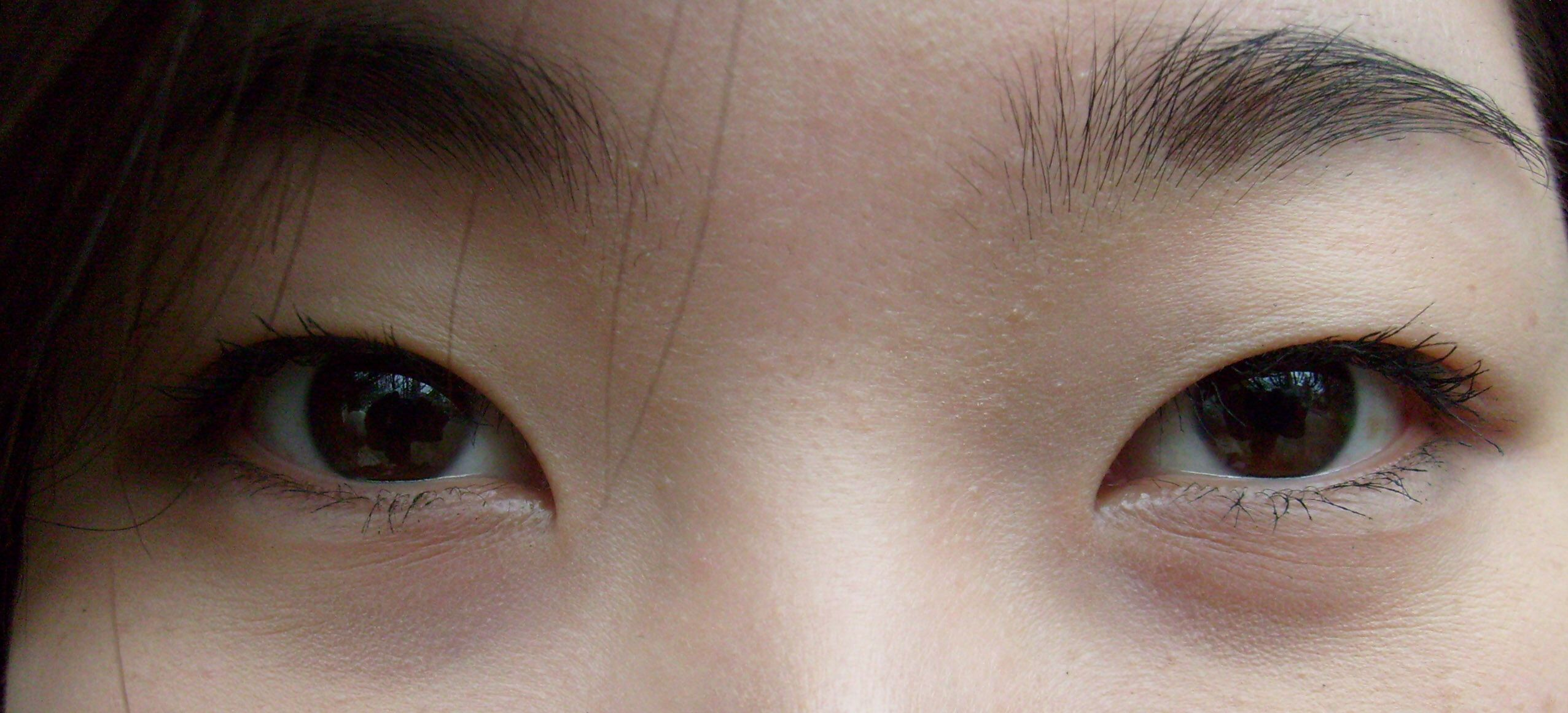 Asian Heavy Fold Eyelid Epicanthic Fold Photos Of Eyes Asian Eyes