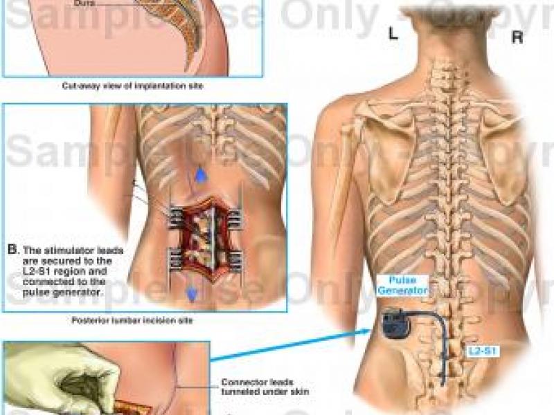 Pin On Life With Endometriosis Fibro Ic Pfd Spondylolythesis