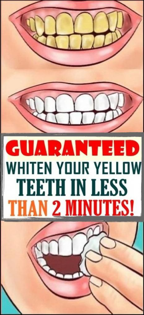 Yellow teeth are embarrassing which makes people feel uncomfortable and less confident. People who…