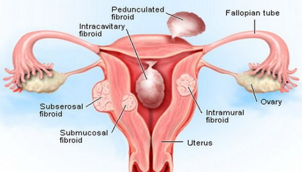Focused Ultrasound For Uterine Fibroids