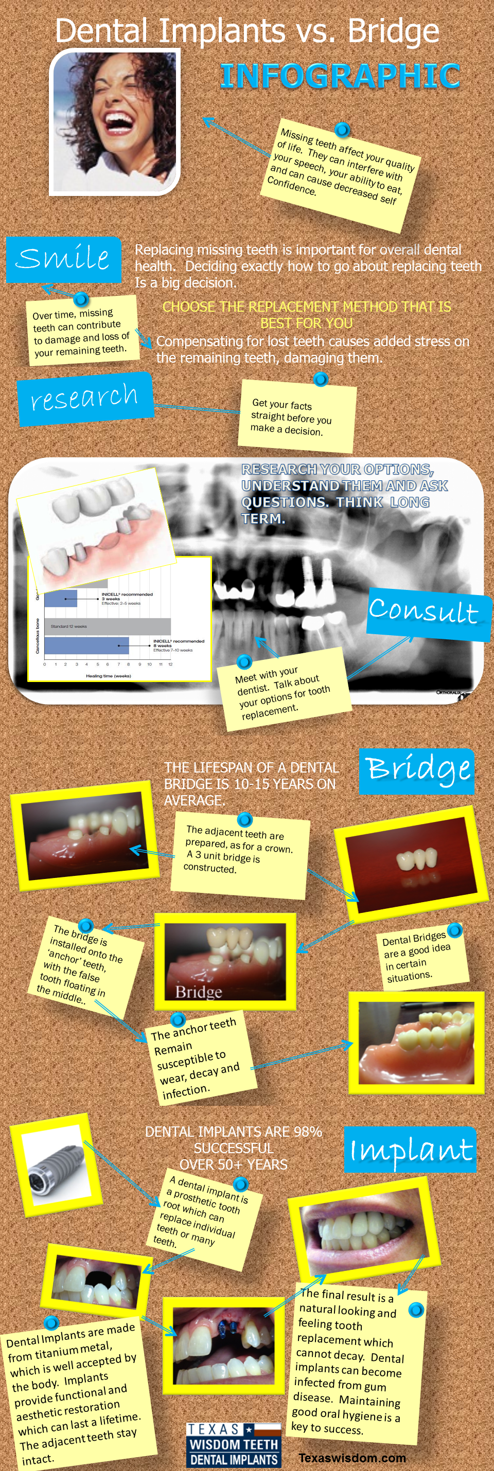 Facts about dental implants vs. dental bridge.  A guide to making an educated decision about replacing missing teeth.