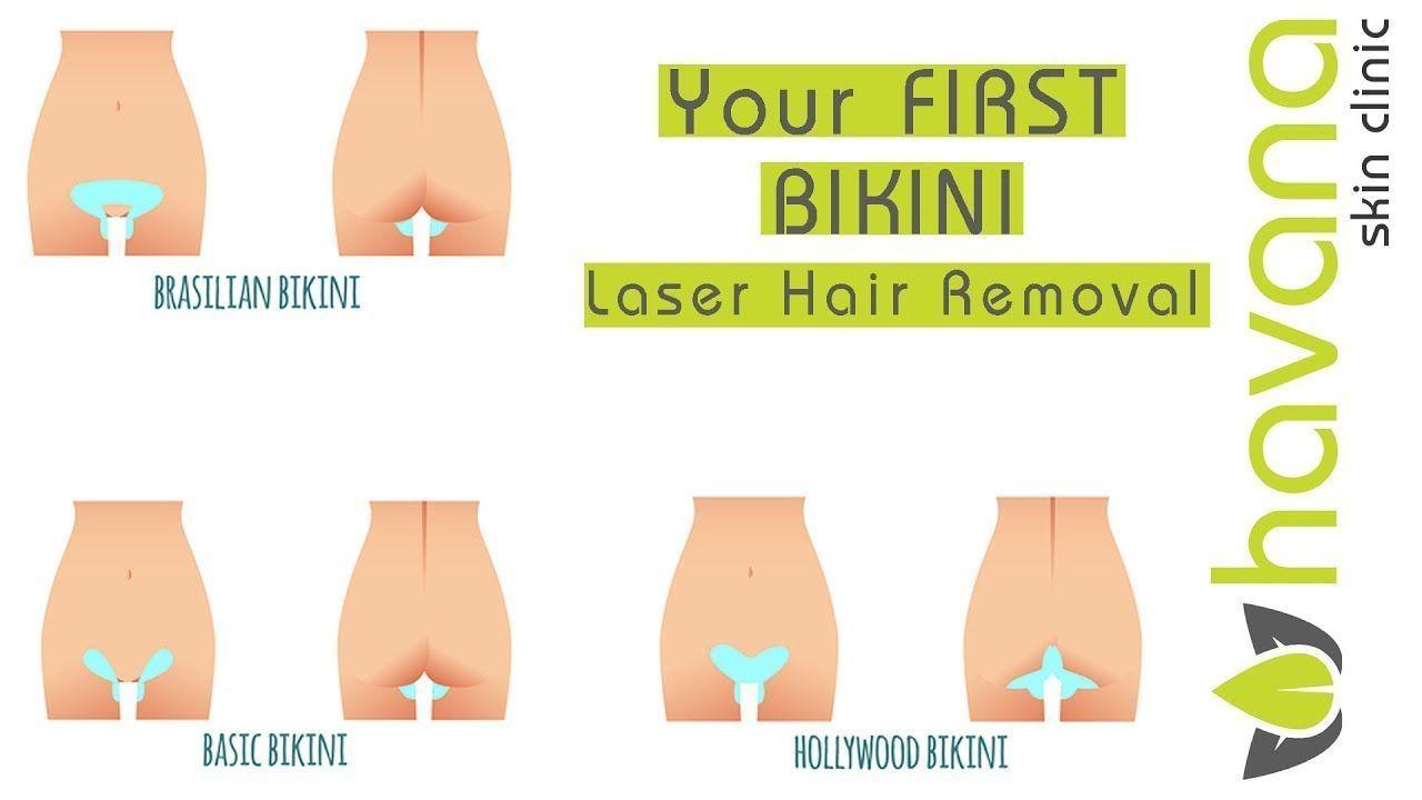 Brazilian Hair Hairremoval Hollywood Laser Laserremover