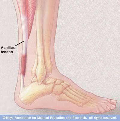 Achilles Tendinitis Symptoms And Causes Achilles Tendonitis