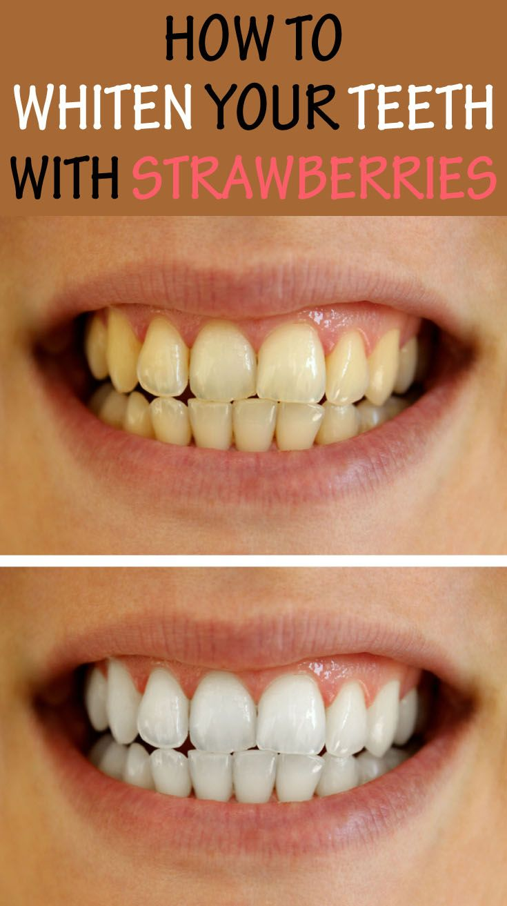 Colgate teeth whitening teeth whitening products pinterest teeth - How To Whiten Your Teeth With Strawberries