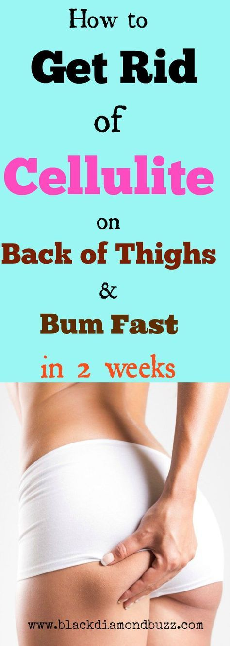 cellulite on bum how to get rid of