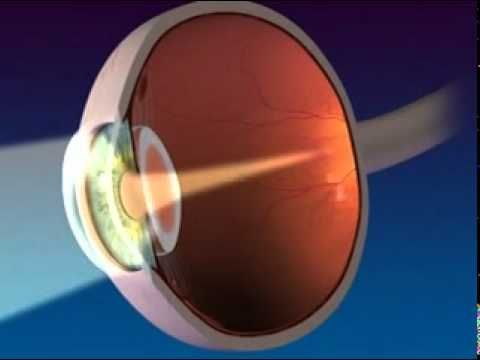 Video Of Anatomy And Function Of The Eye High School Science