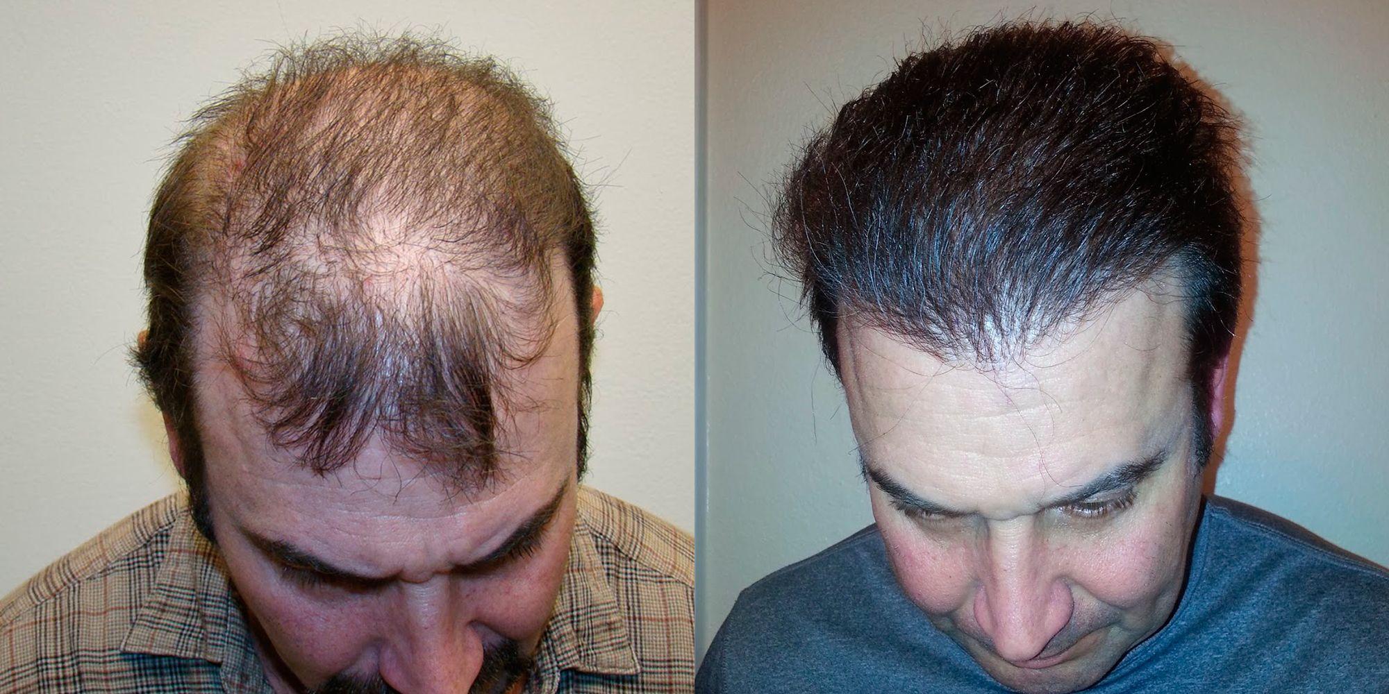 Severe Scarring Correctional Hair Transplant Procedure