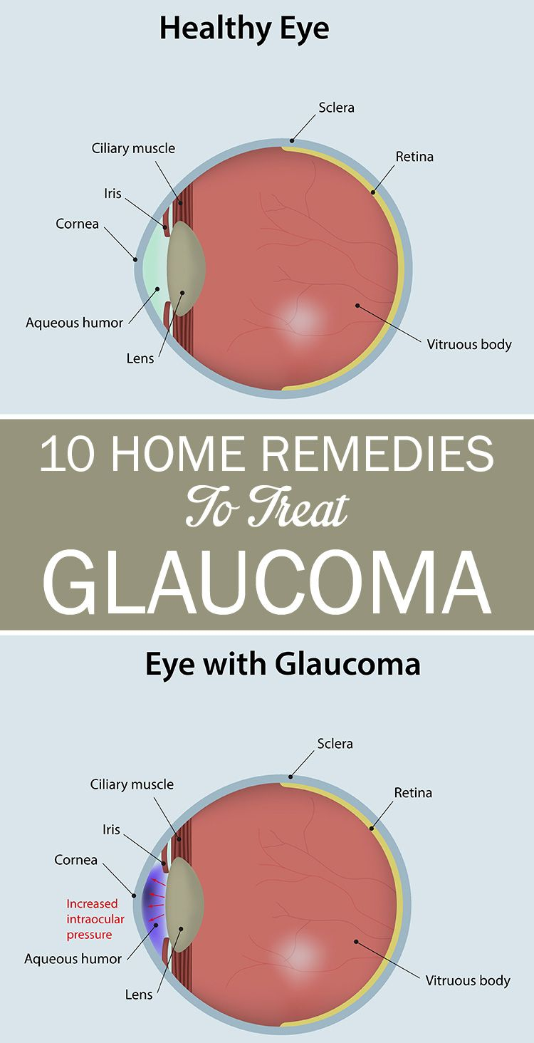 Treatment of glaucoma folk remedies and healers recipes 26