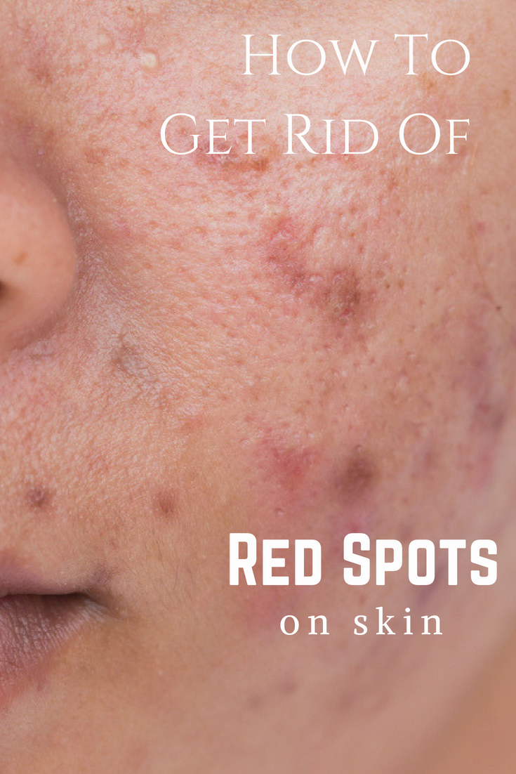 How to get rid of red spots after acne 96