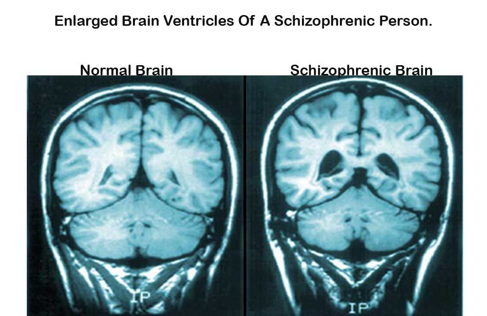 Image result for disconnection in the brain of schizophrenic ...