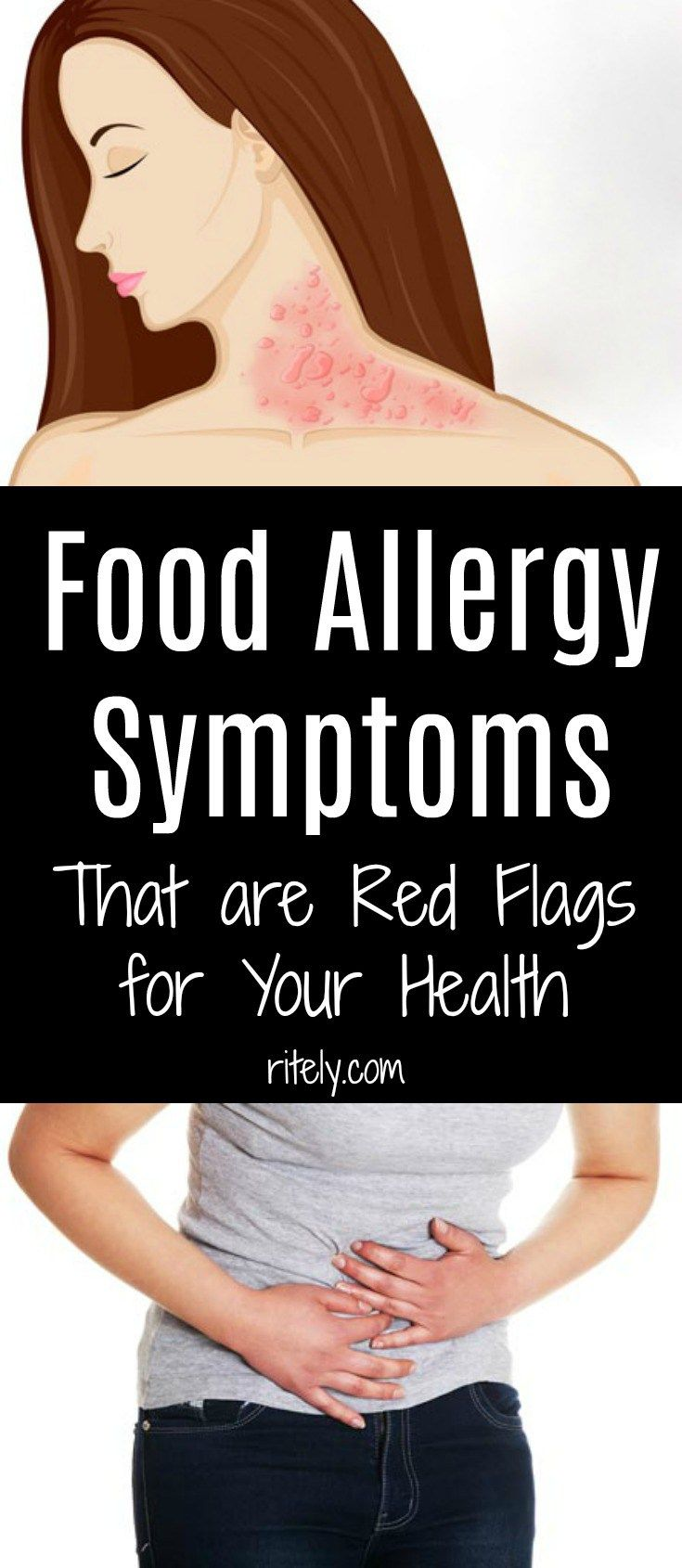 Food Allergy Symptoms That Are Red Flags For Your Health!!!!!!  #lifestyle  #fitness