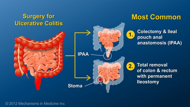 The Most Common Surgeries Performed For Ulcerative Colitis Are Total Colectomy With Ileal Pouch -5258