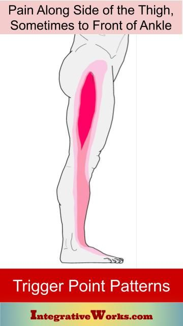 Pin on Hip - Trigger Point Pain