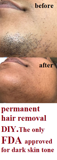 Permanent Facial Hair Removal For Women Permanent Hair Removal Diy Hair Removal Permanent Facial Hair Removal Permanent Hair Removal Diy
