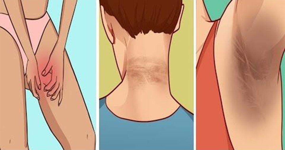 líneas oscuras en la diabetes del cuello