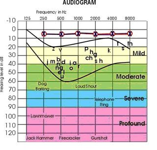 an audiogram is a chart created by the audiologist to