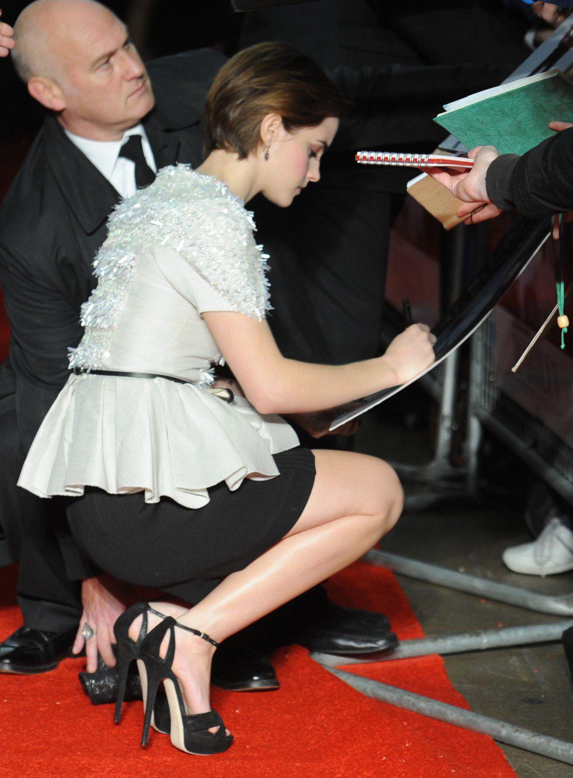 Watson hairy emma Emma Watson