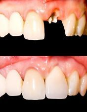 Cosmetic Dentistry Snap On Instant Perfect Smile Comfort Fit