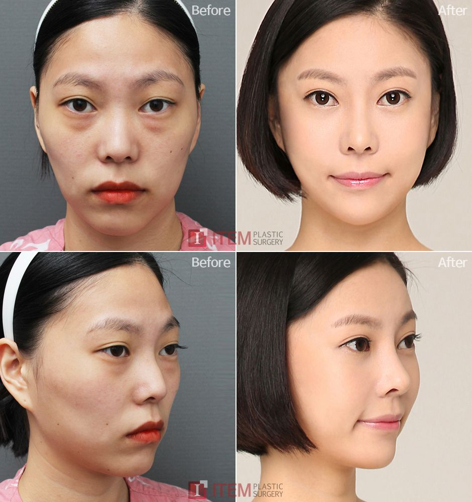 Item Plastic Surgery In Korea Back Of Head Augmentation
