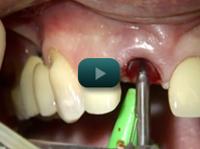 ImplantePerio | Vídeos