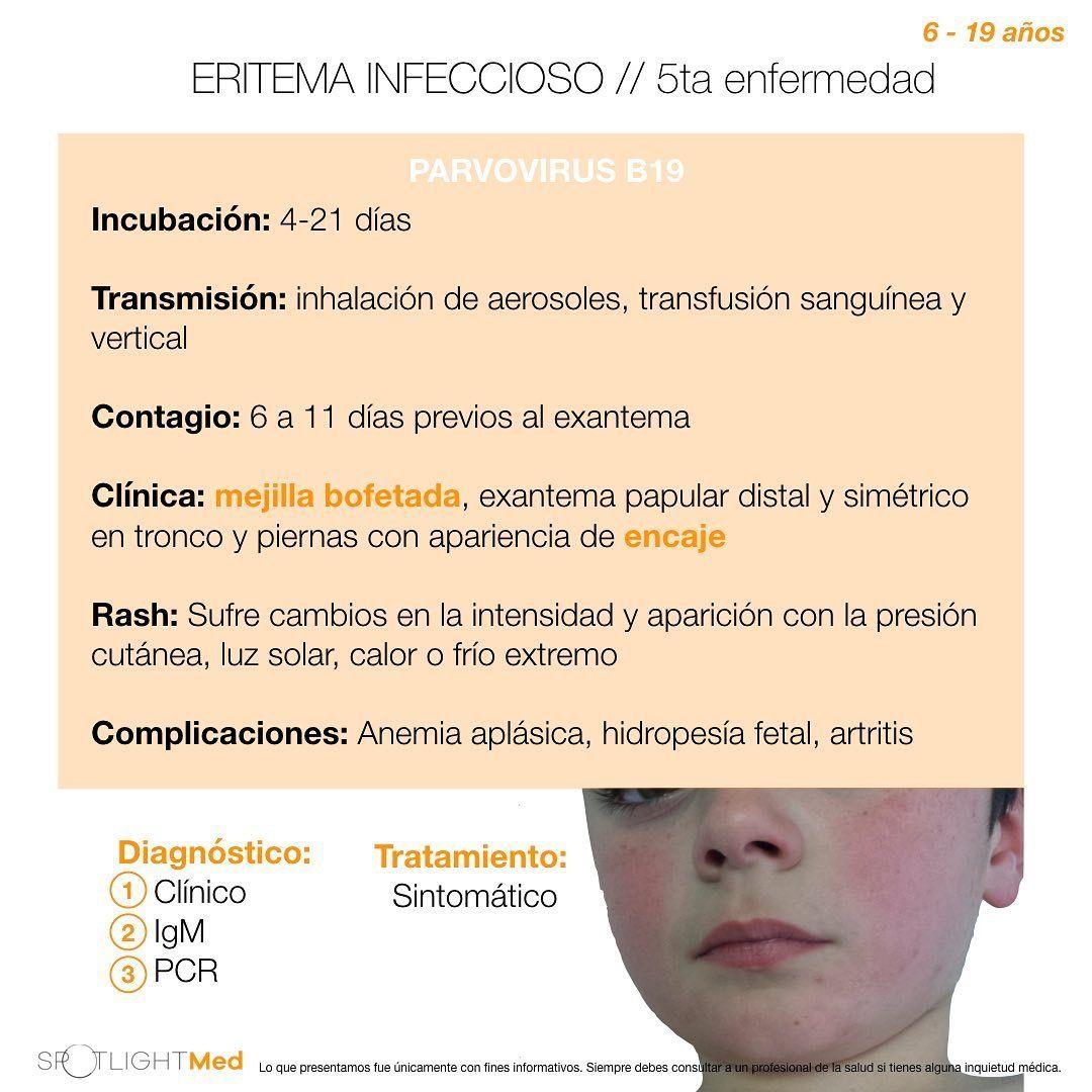 Eritema Infeccioso Eritema Infeccioso Aerosoles Salud