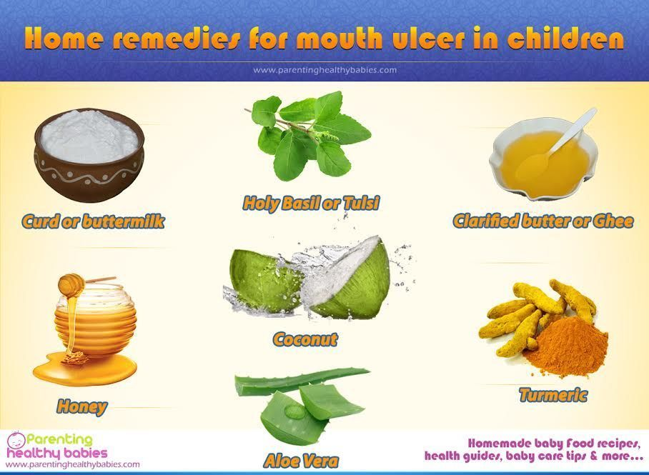 17 Rapid Home Remedies For Canker Sores Canker Sore Remedy