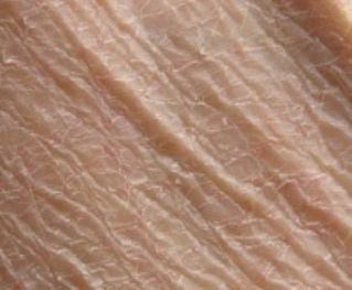 9 Top Remedies for Dry Scaly Skin | PIEL RESECA | Dry ...