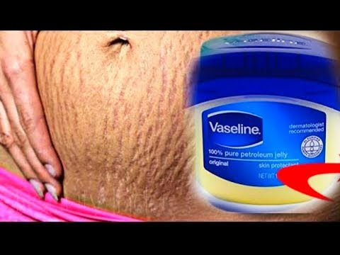 Pin By مجلة سارة رجيم سريع صحي تخ On البطن بعد الولادة الكرش Vaseline Pure Products Vaseline Bottle