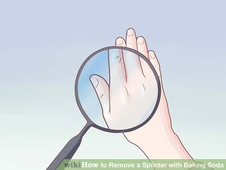 Image titled Remove a Splinter with Baking Soda Step 3